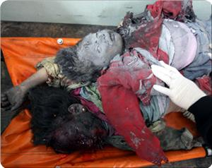child-victims-gaza